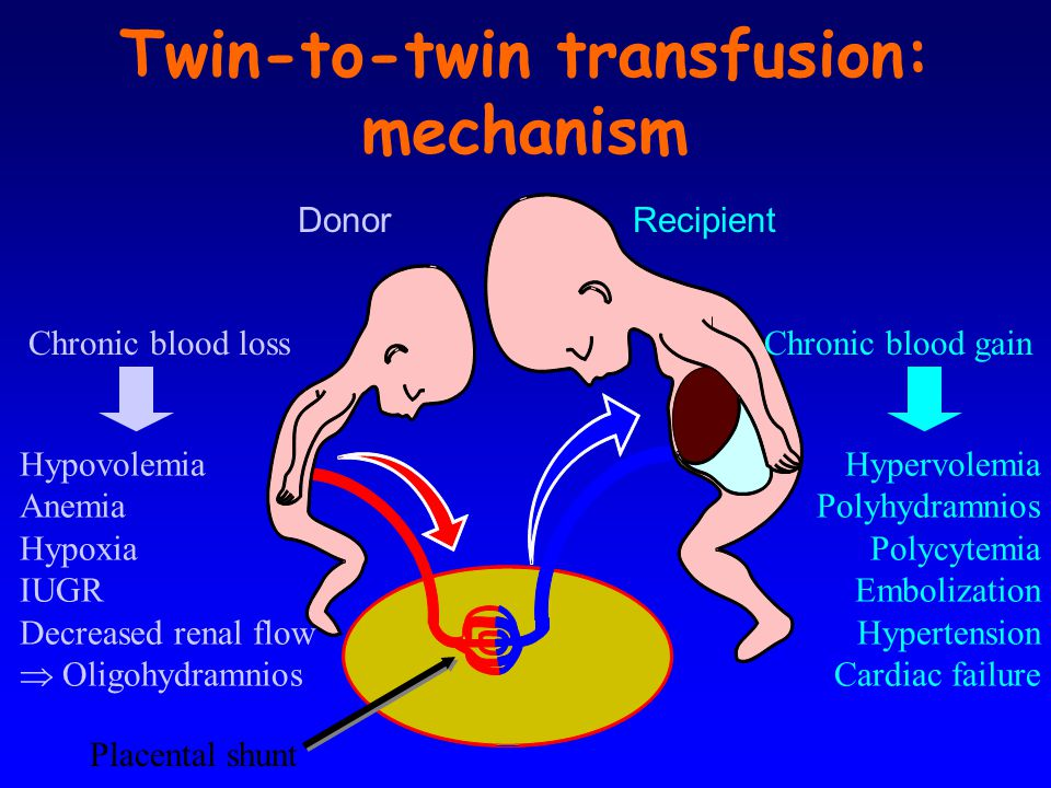 Twin-to-twin transfusion: mechanism