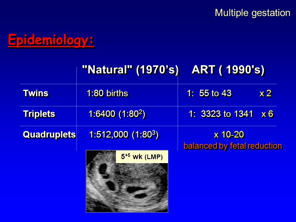 Epidemiology: Multiple gestation Natural (1970's) ART ( 1990 s)