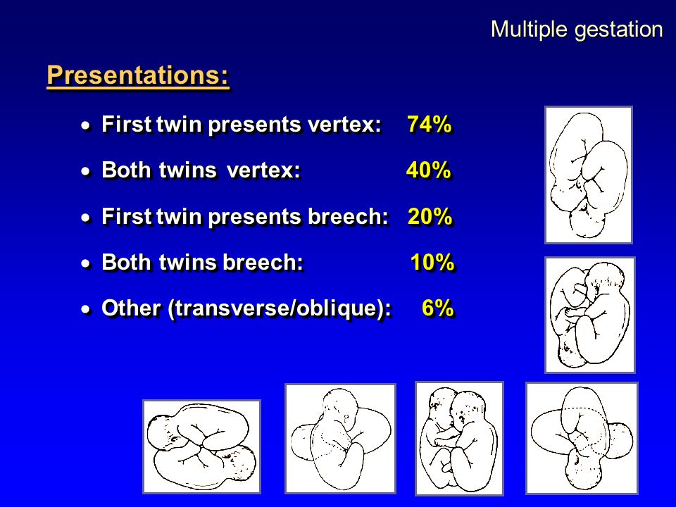 Presentations: Multiple gestation First twin presents vertex: 74%