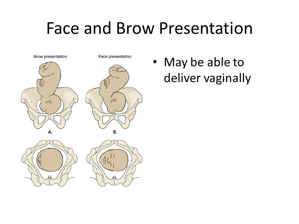 Face and Brow Presentation