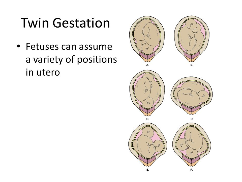 Twin Gestation Fetuses can assume a variety of positions in utero