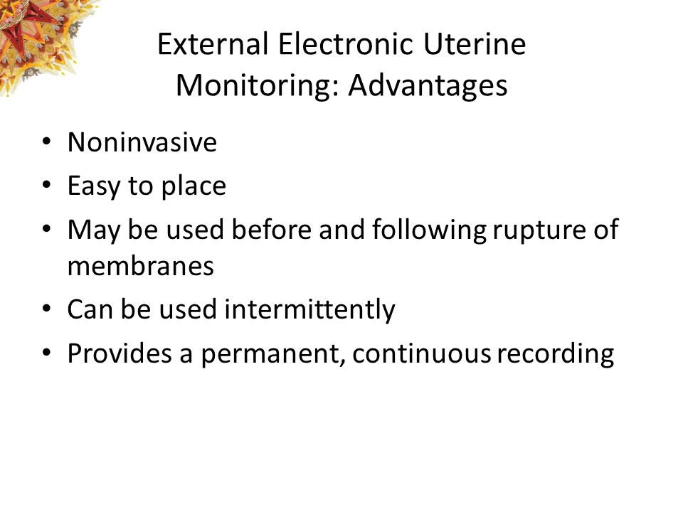 External Electronic Uterine Monitoring: Advantages
