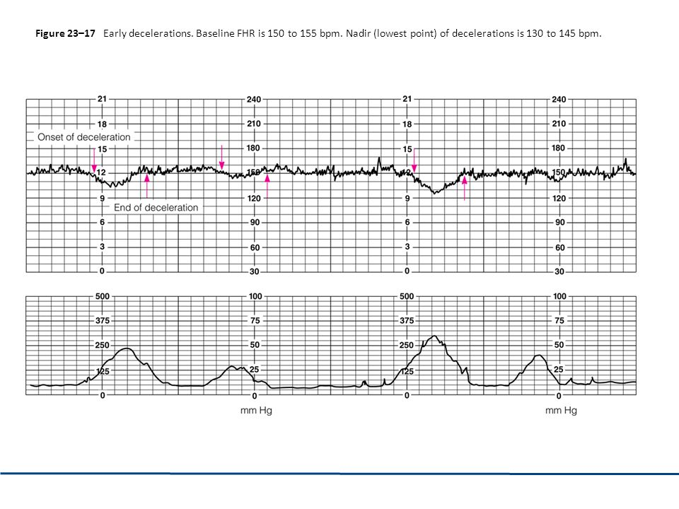 Figure 23–17 Early decelerations. Baseline FHR is 150 to 155 bpm