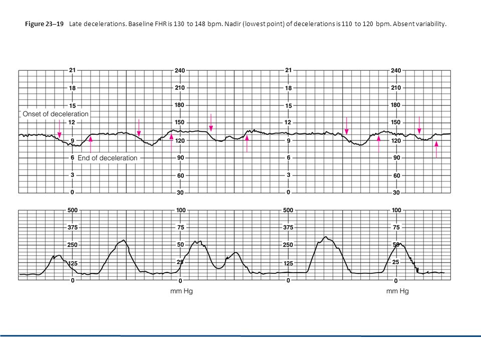 Figure 23–19 Late decelerations. Baseline FHR is 130 to 148 bpm