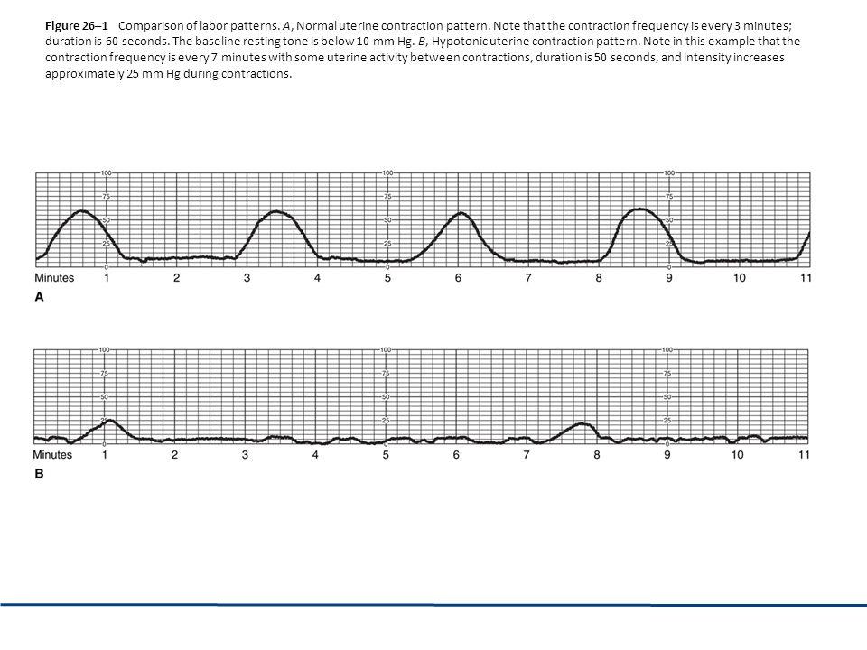 Figure 26–1 Comparison of labor patterns