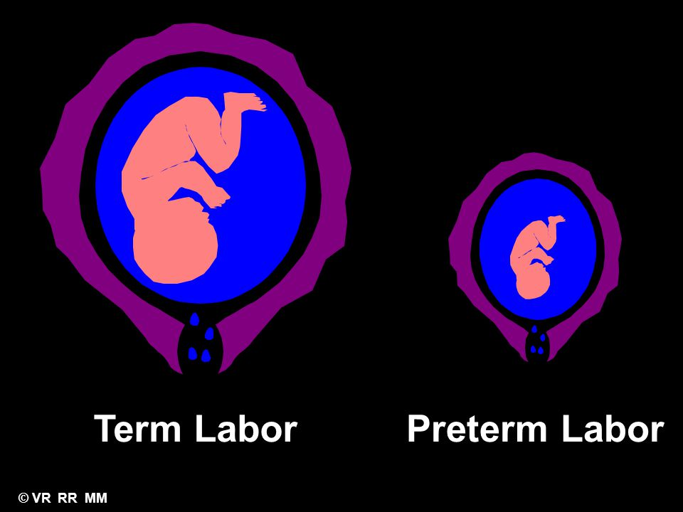 Term Labor Preterm Labor