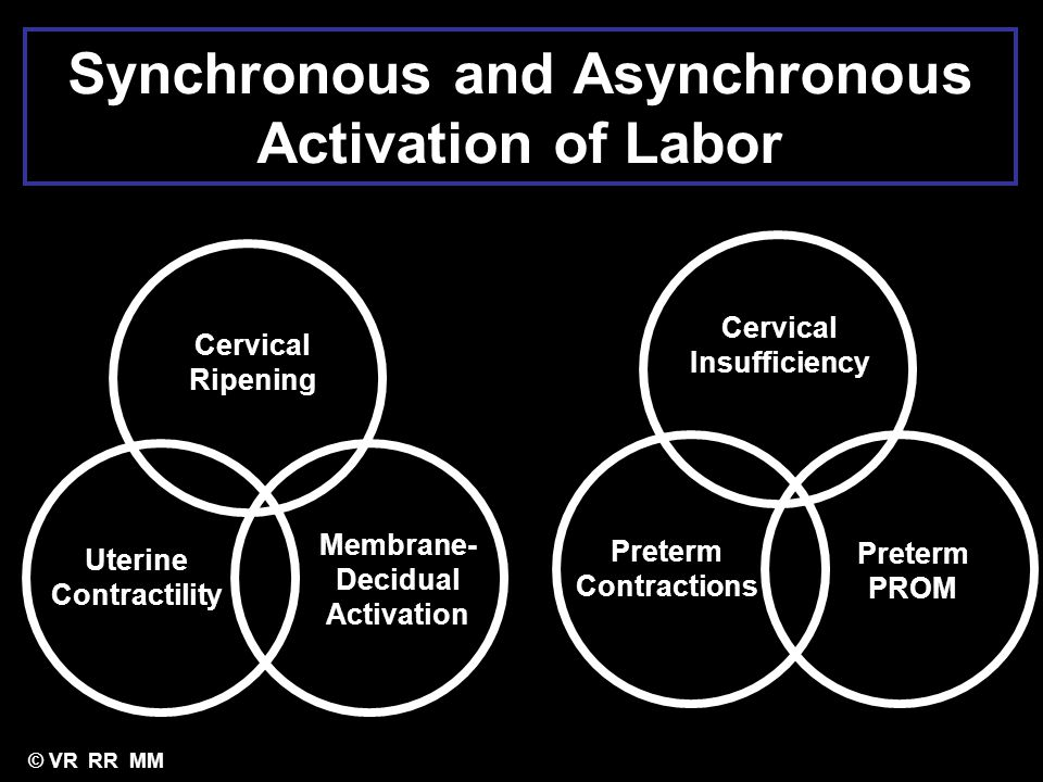 Synchronous and Asynchronous Activation of Labor