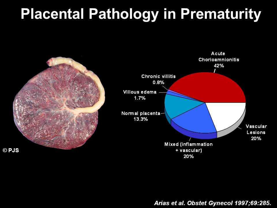Placental Pathology in Prematurity