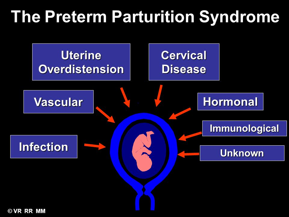 The Preterm Parturition Syndrome