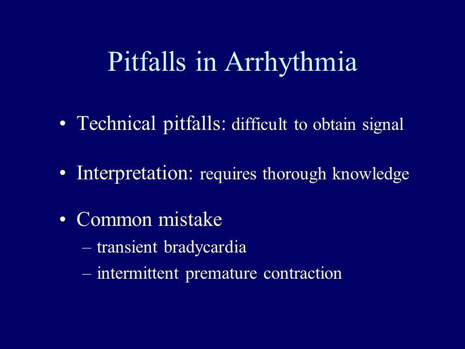 Pitfalls in Arrhythmia