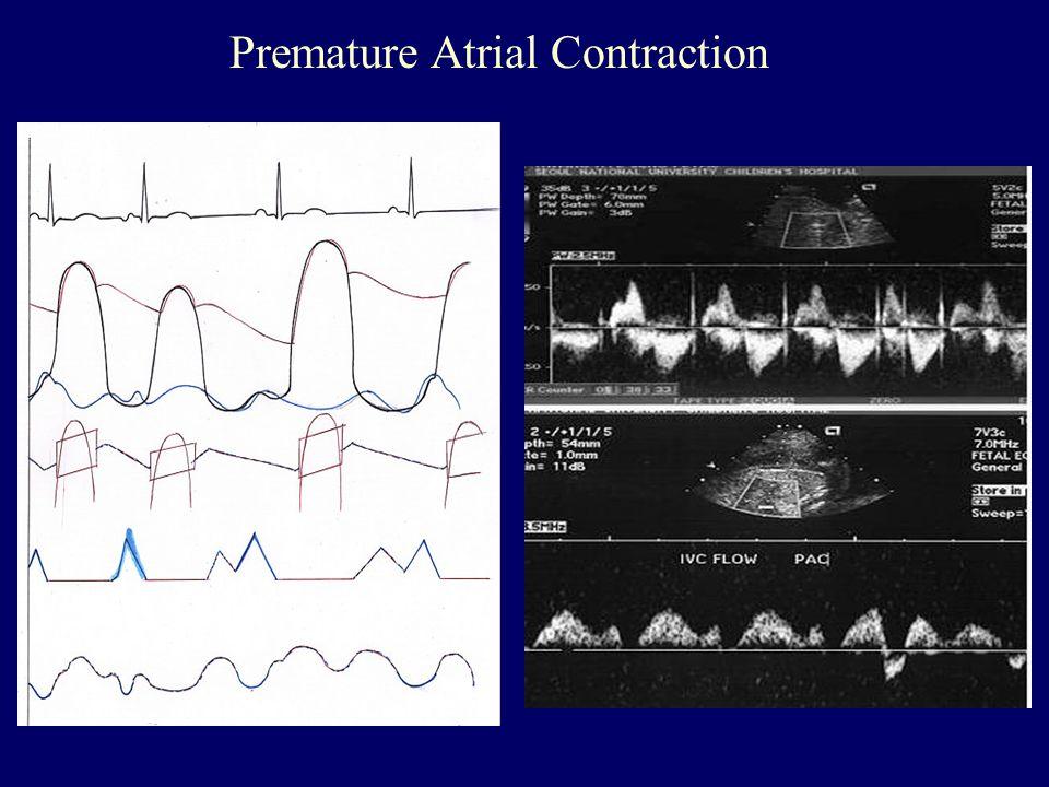Premature Atrial Contraction