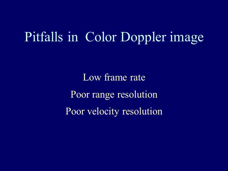 Pitfalls in Color Doppler image