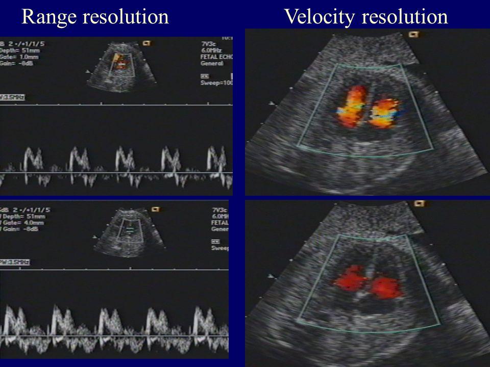 Range resolution Velocity resolution