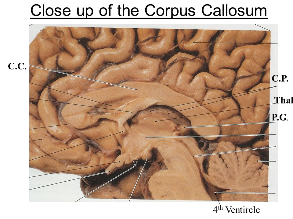Close up of the Corpus Callosum