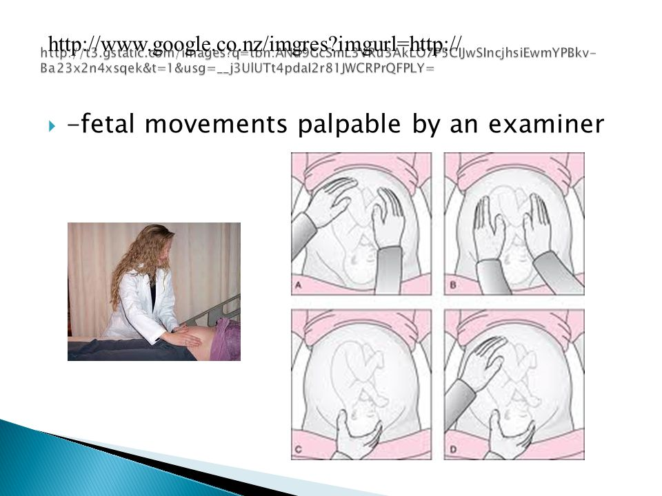 -fetal movements palpable by an examiner