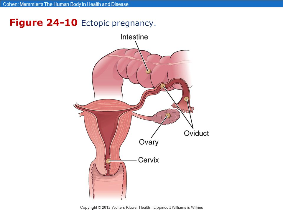 Figure 24-10 Ectopic pregnancy.