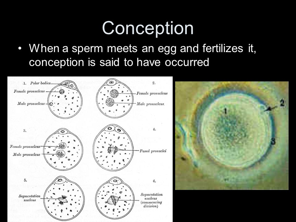 Conception When a sperm meets an egg and fertilizes it, conception is said to have occurred