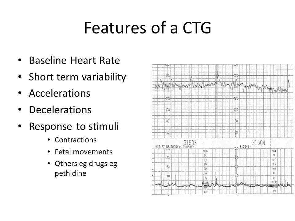 Features of a CTG Baseline Heart Rate Short term variability