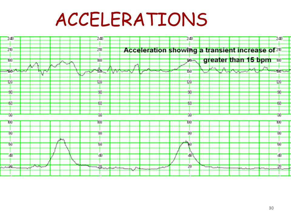 ACCELERATIONS 30