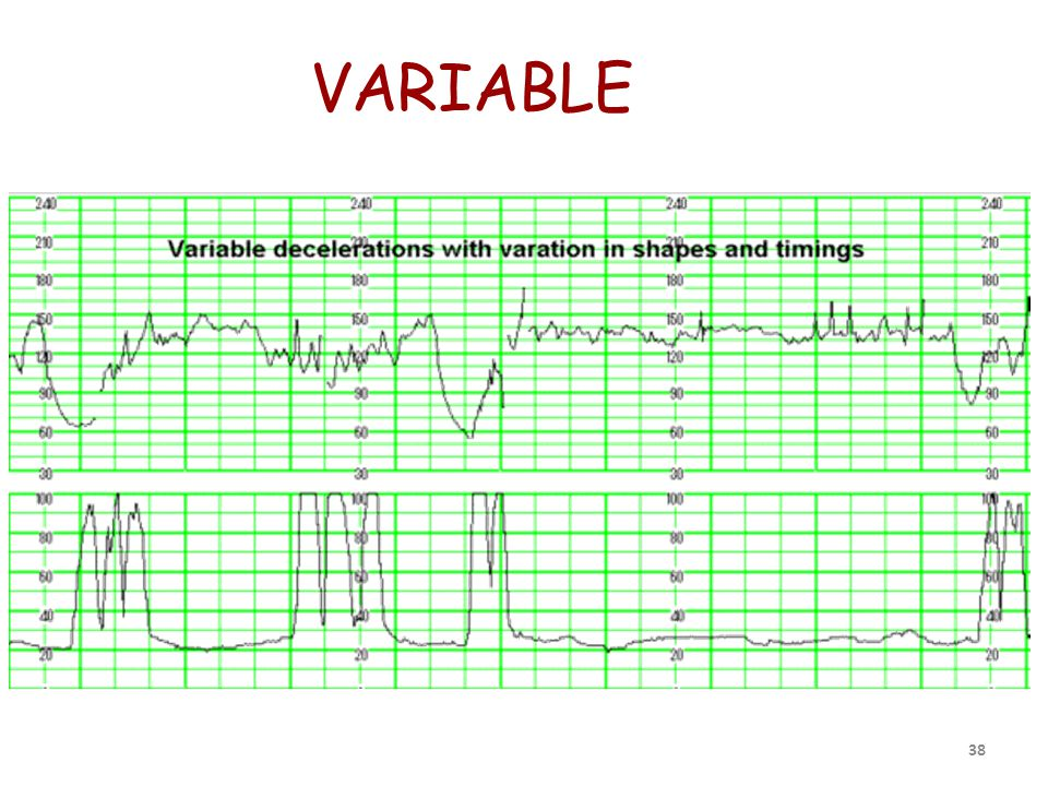 VARIABLE 38