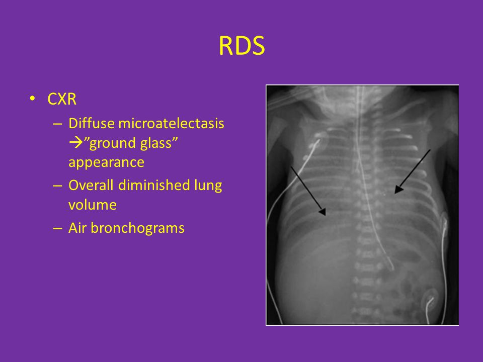 RDS CXR Diffuse microatelectasis  ground glass appearance