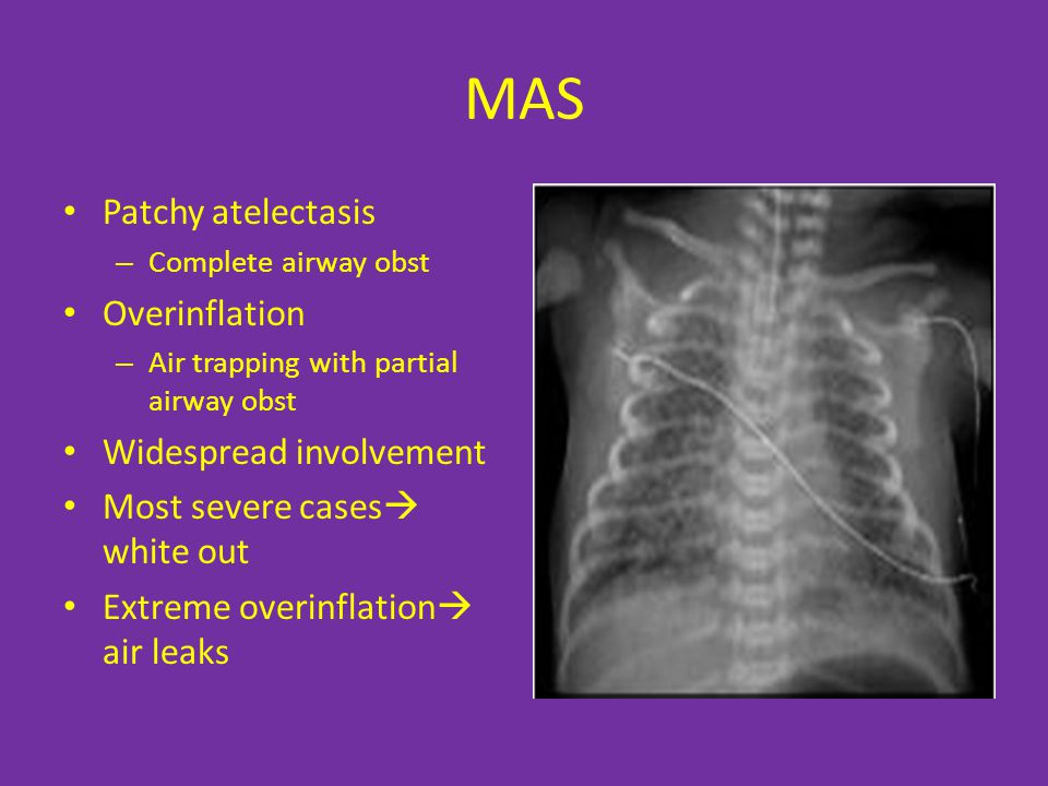 MAS Patchy atelectasis Overinflation Widespread involvement