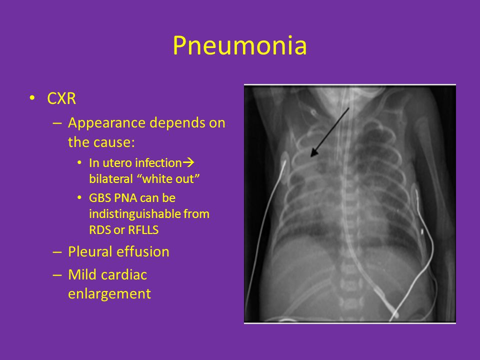 Pneumonia CXR Appearance depends on the cause: Pleural effusion
