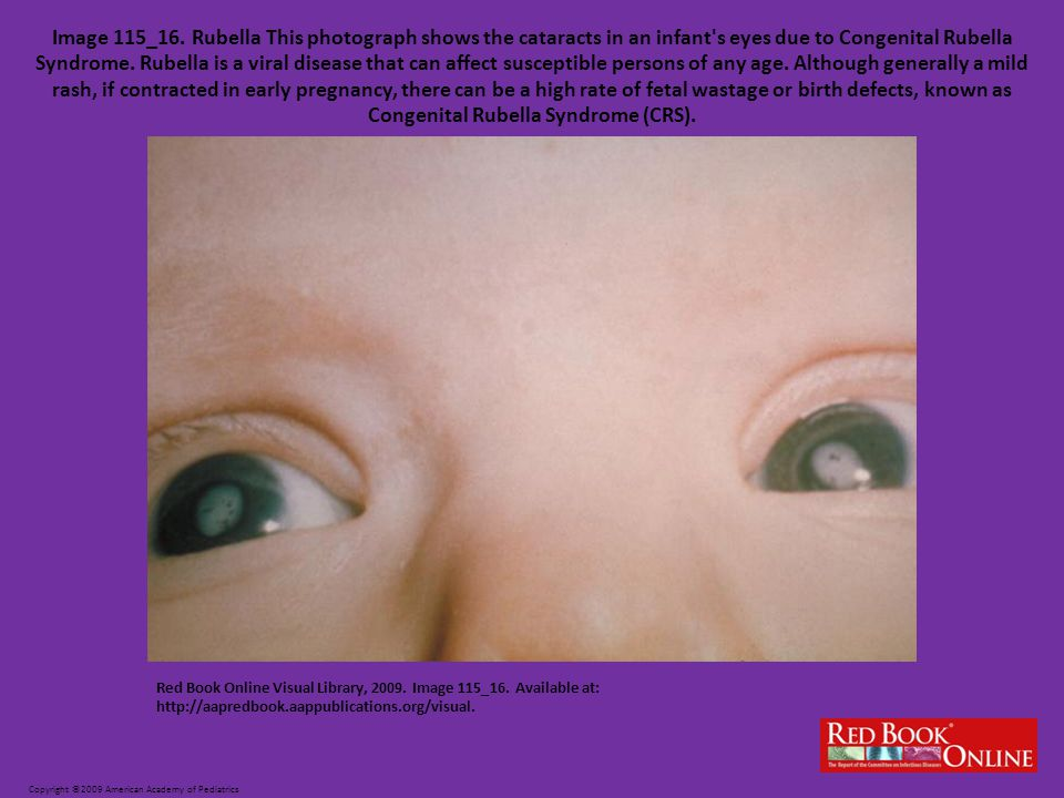 Image 115_16. Rubella This photograph shows the cataracts in an infant s eyes due to Congenital Rubella Syndrome. Rubella is a viral disease that can affect susceptible persons of any age. Although generally a mild rash, if contracted in early pregnancy, there can be a high rate of fetal wastage or birth defects, known as Congenital Rubella Syndrome (CRS).