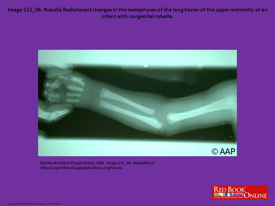 Image 115_08. Rubella Radiolucent changes in the metaphyses of the long bones of the upper extremity of an infant with congenital rubella.