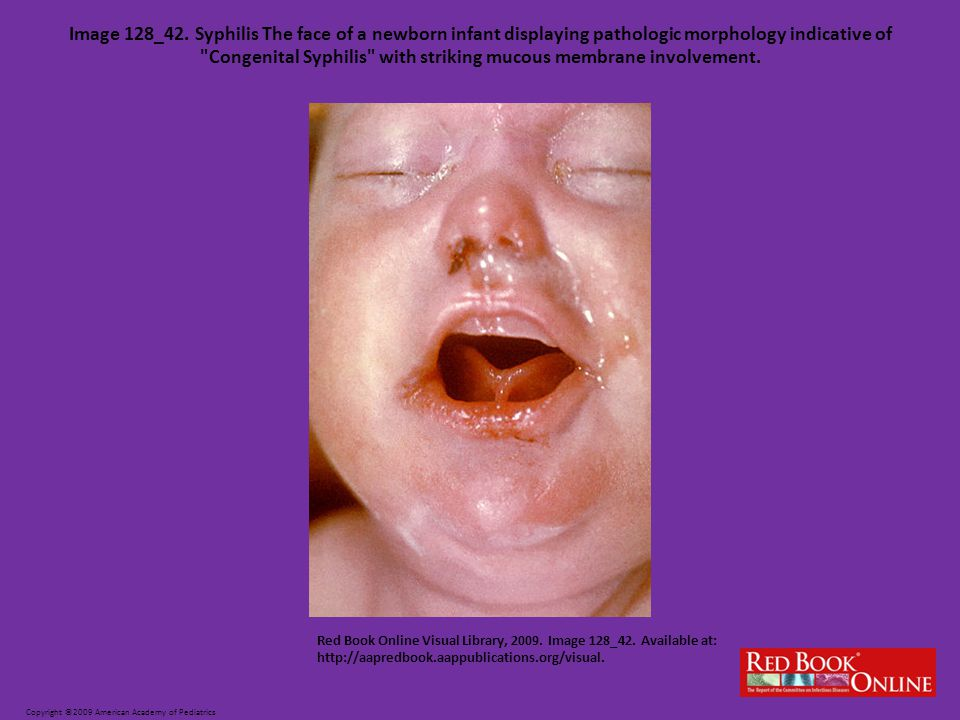 Image 128_42. Syphilis The face of a newborn infant displaying pathologic morphology indicative of Congenital Syphilis with striking mucous membrane involvement.