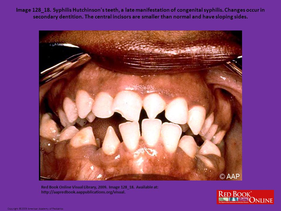 Image 128_18. Syphilis Hutchinson s teeth, a late manifestation of congenital syphilis. Changes occur in secondary dentition. The central incisors are smaller than normal and have sloping sides.
