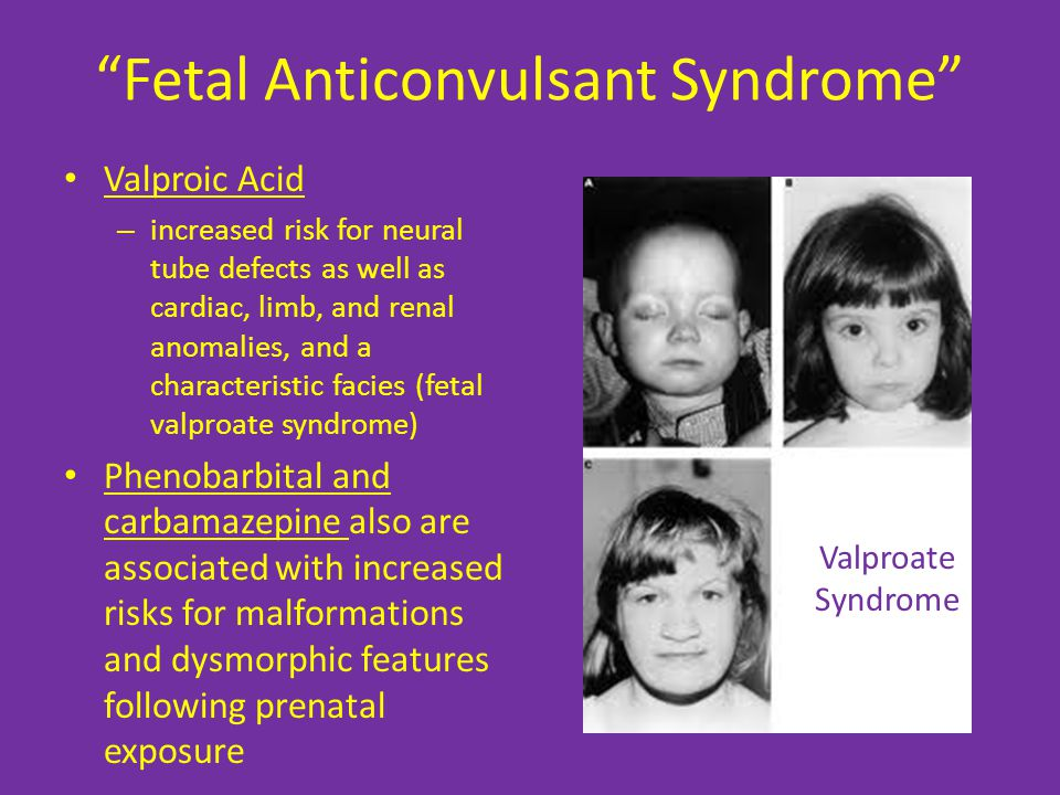 Fetal Anticonvulsant Syndrome