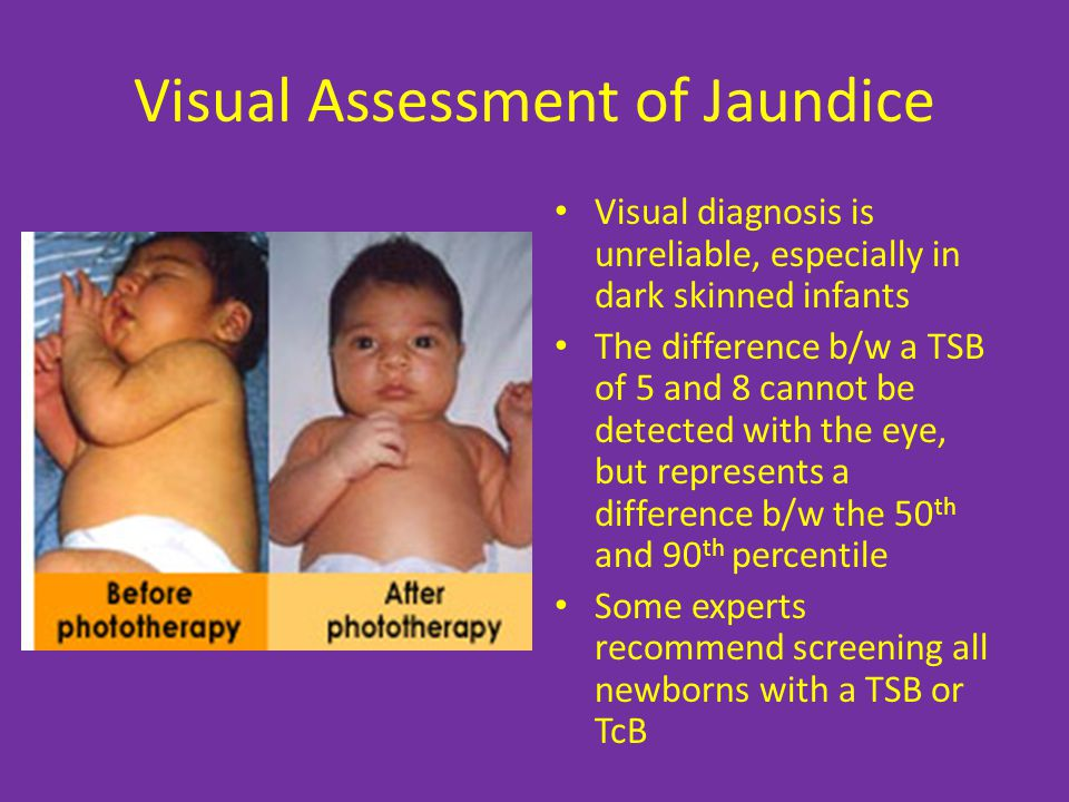 Visual Assessment of Jaundice