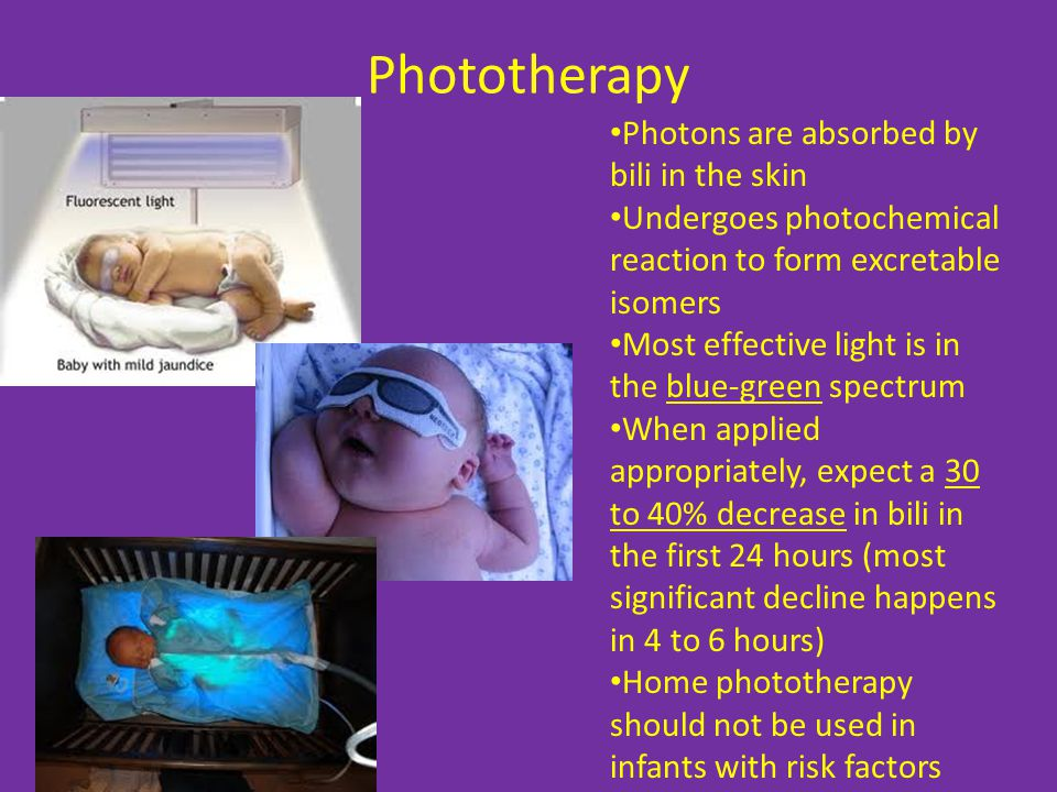 Phototherapy Photons are absorbed by bili in the skin