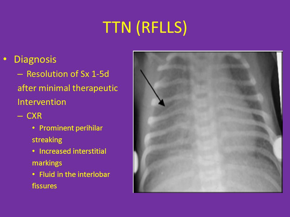 TTN (RFLLS) Diagnosis Resolution of Sx 1-5d after minimal therapeutic