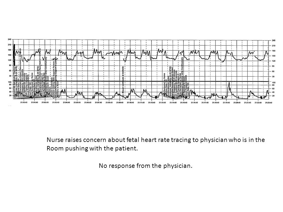 Nurse raises concern about fetal heart rate tracing to physician who is in the