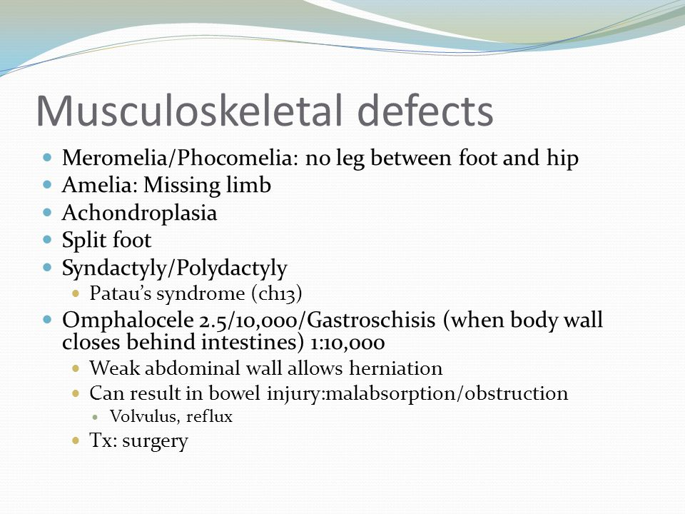 Musculoskeletal defects