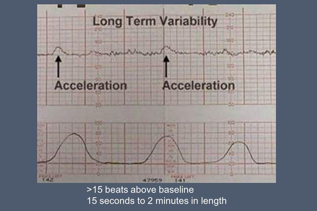 >15 beats above baseline