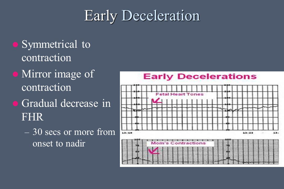 Early Deceleration Symmetrical to contraction