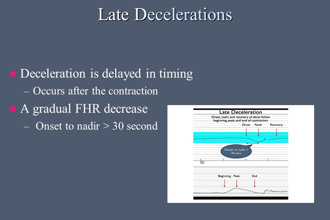 Late Decelerations Deceleration is delayed in timing