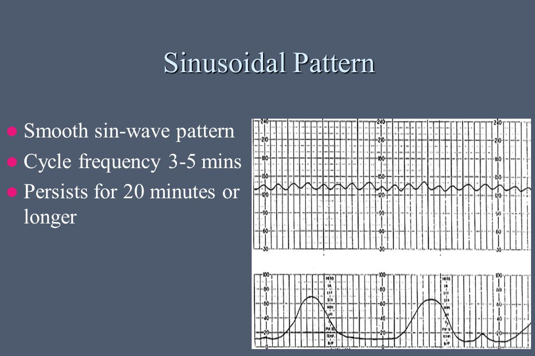Sinusoidal Pattern Smooth sin-wave pattern Cycle frequency 3-5 mins