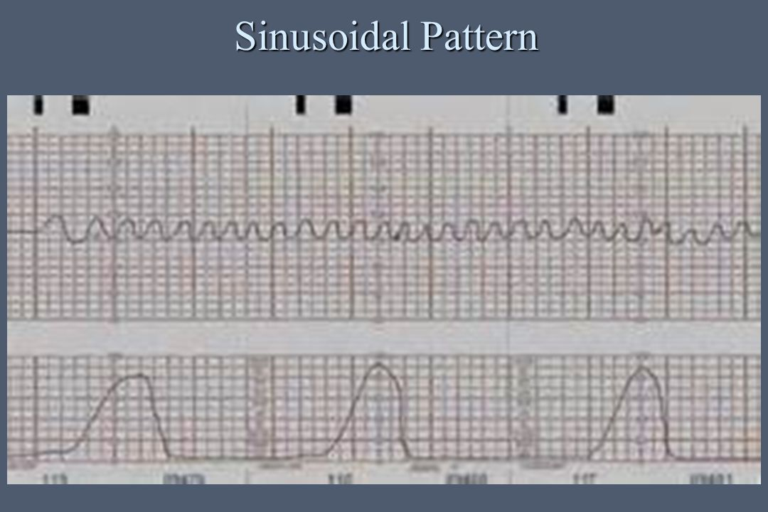 Sinusoidal Pattern