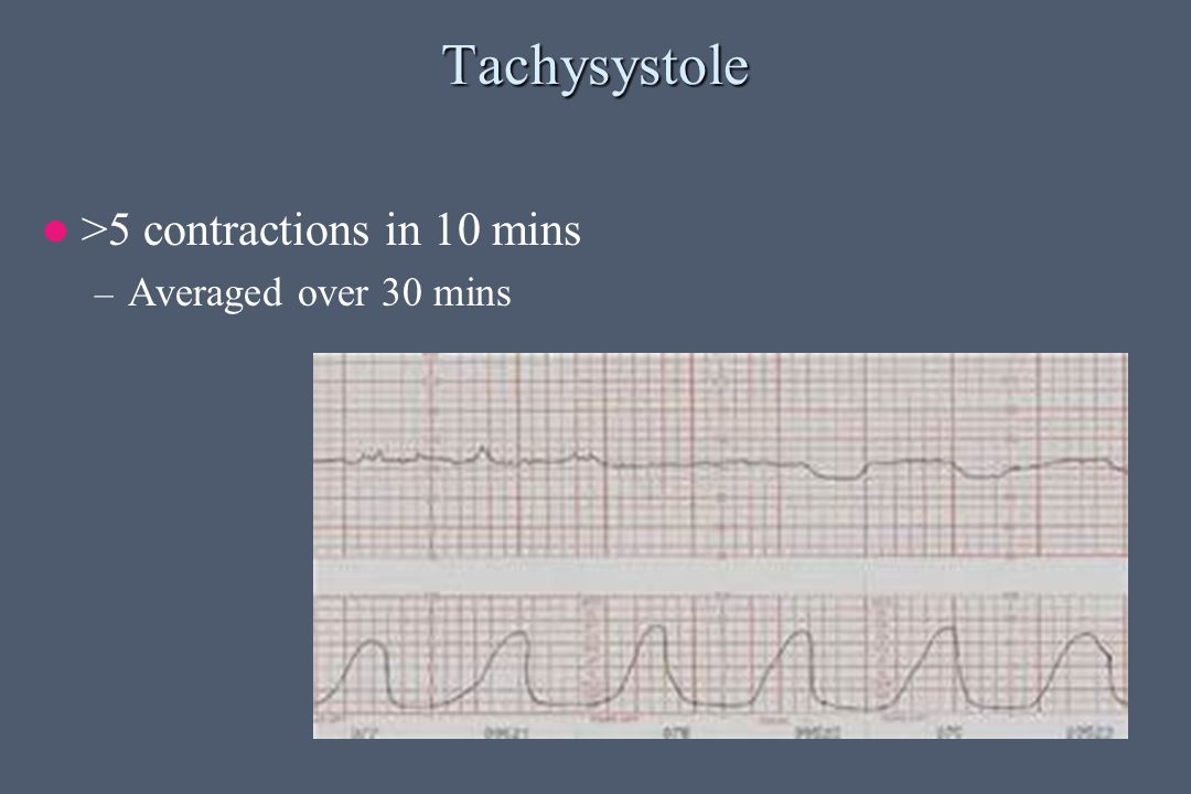 Tachysystole >5 contractions in 10 mins Averaged over 30 mins