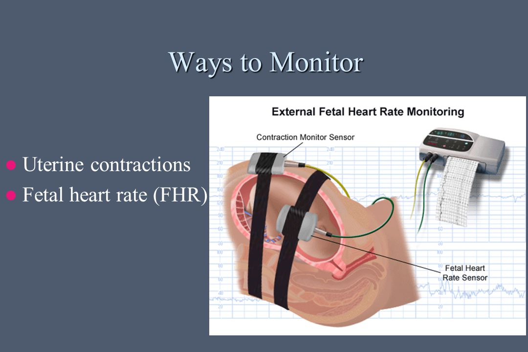 Ways to Monitor Uterine contractions Fetal heart rate (FHR)