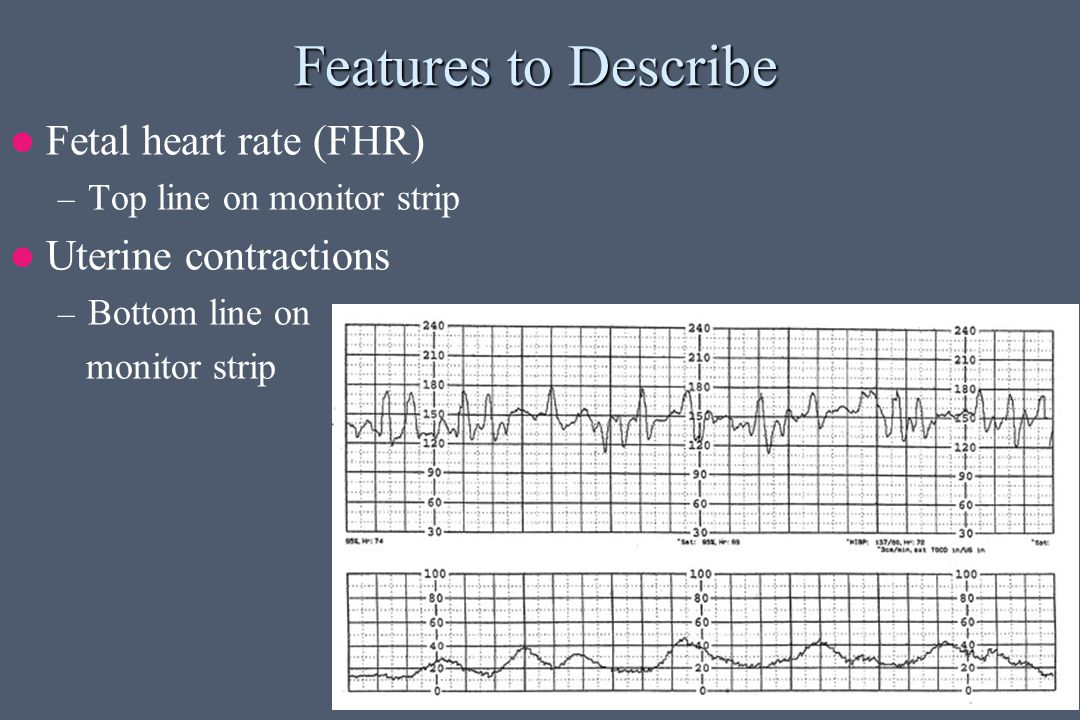 Features to Describe Fetal heart rate (FHR) Uterine contractions