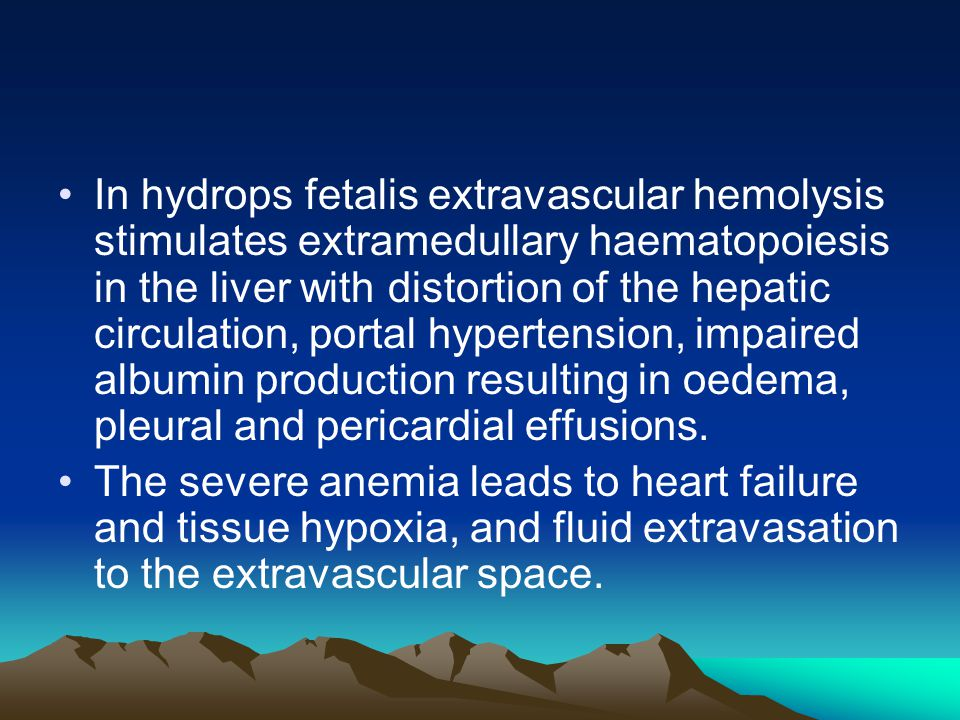 In hydrops fetalis extravascular hemolysis stimulates extramedullary haematopoiesis in the liver with distortion of the hepatic circulation, portal hypertension, impaired albumin production resulting in oedema, pleural and pericardial effusions.