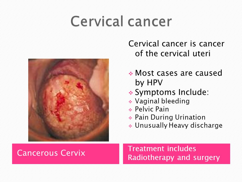 Cervical cancer Cervical cancer is cancer of the cervical uteri