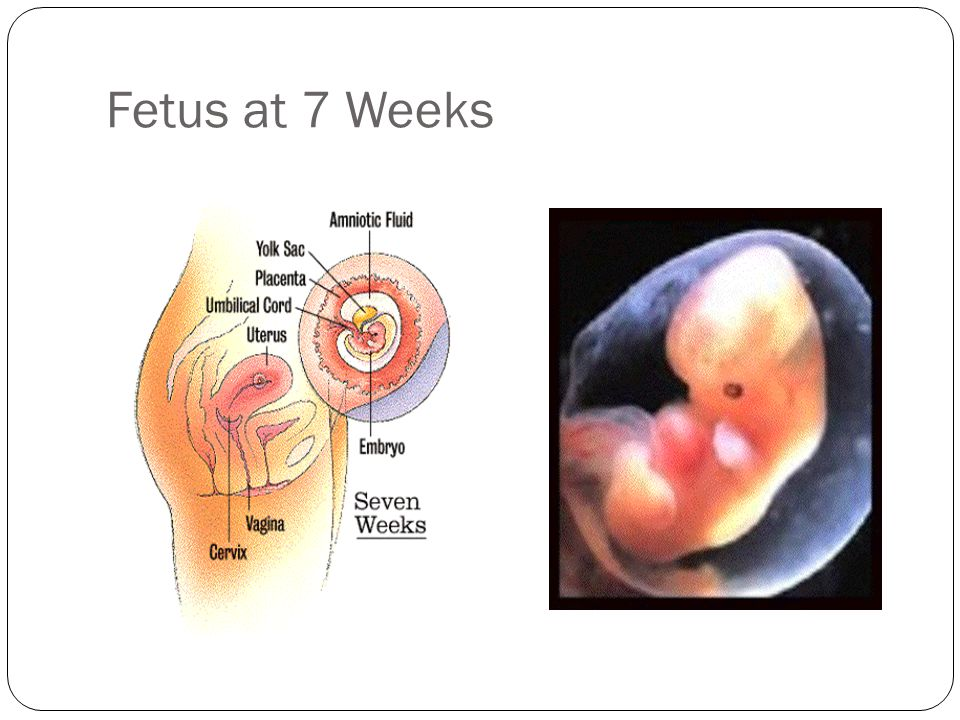 Fetus at 7 Weeks