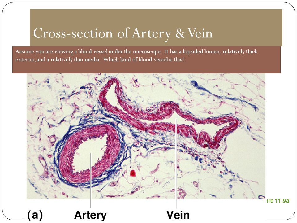 Cross-section of Artery & Vein