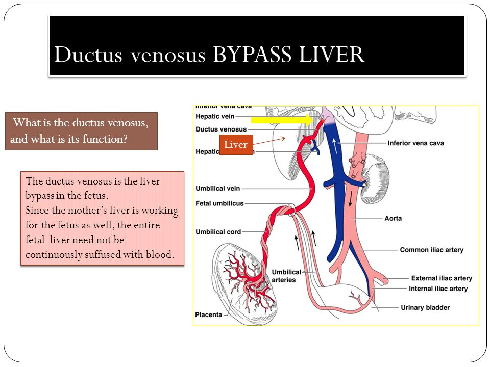 Ductus venosus BYPASS LIVER